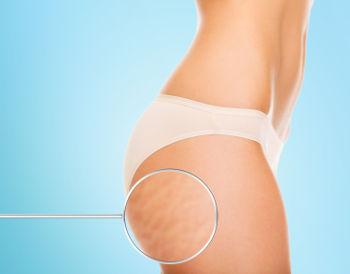 La mésothérapie pour traiter la cellulite