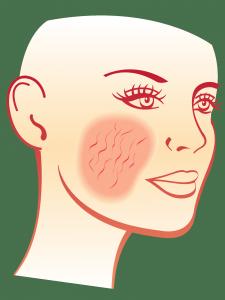 Le laser vasculaire ou la lumière intense pulsée contre la couperose