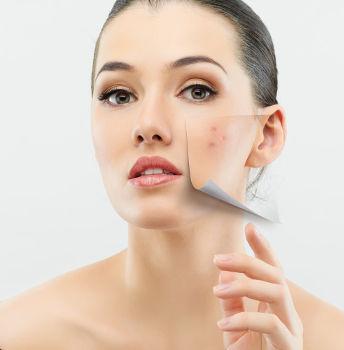 Le laser CO2 fractionné pour traiter les cicatrices d'acné