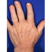 Traitement taches brunes main après