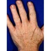 Traitement taches brunes main avant