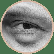 blepharoplastie-sans-chirurgie-avignon