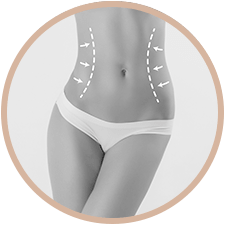 Lipoaspiration